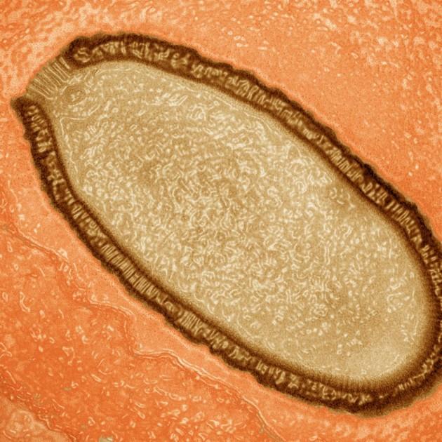Una imagen de una ameba infectada por el 'pithovirus'. Parte del patógeno puede verse arriba a la izquierda como una estructura de bandas paralelas. / J.Bartoli, C. Abergel
